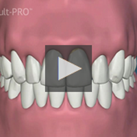 Presentation Code: 1A1, Presentation Name: Periodontal Disease Gum View Movie
